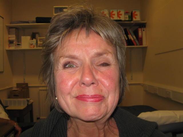 Botulinum Toxin - Facial Palsy UK