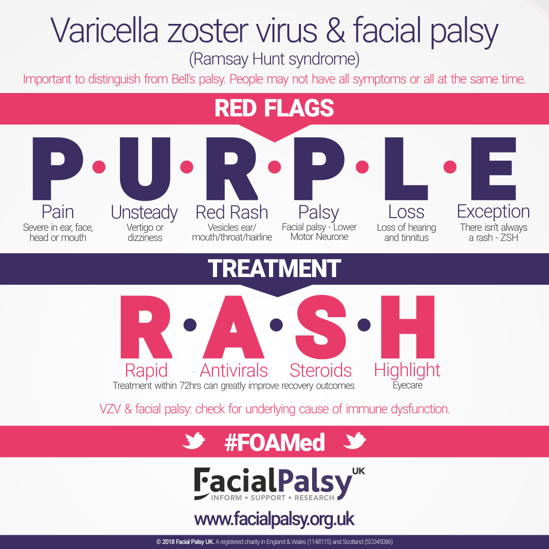 Varicella Zoster Virus, Herpes Zoster Oticus and Facial Palsy
