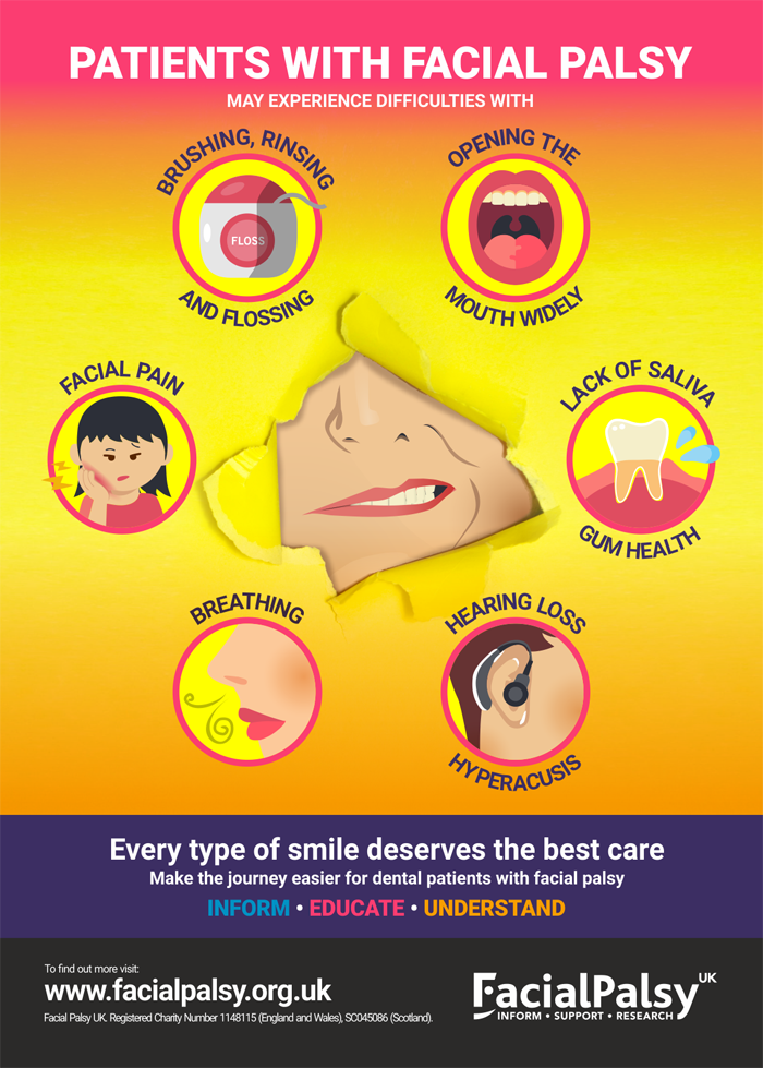 Facial Palsy Dental Poster